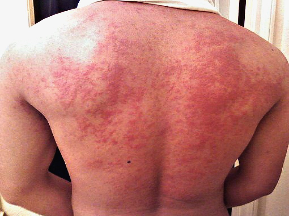Red hives breakout on a man's back because he's stressed out